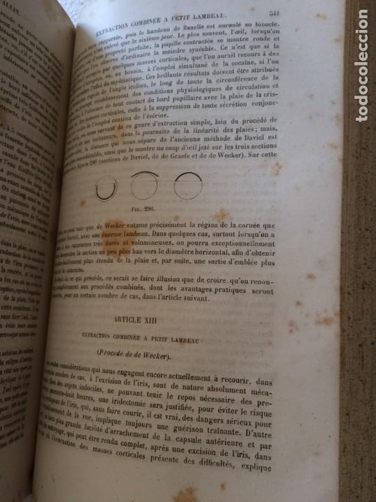 Libros antiguos: Manuel.Dophthaologie.Wecwer et Masselon (1889) - Foto 20 - 90819052