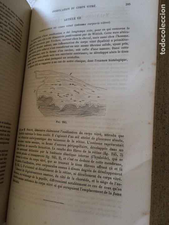 Libros antiguos: Manuel.Dophthaologie.Wecwer et Masselon (1889) - Foto 22 - 90819052