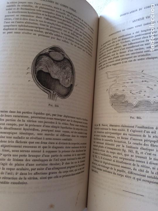 Libros antiguos: Manuel.Dophthaologie.Wecwer et Masselon (1889) - Foto 23 - 90819052