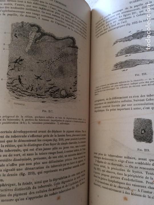 Libros antiguos: Manuel.Dophthaologie.Wecwer et Masselon (1889) - Foto 26 - 90819052