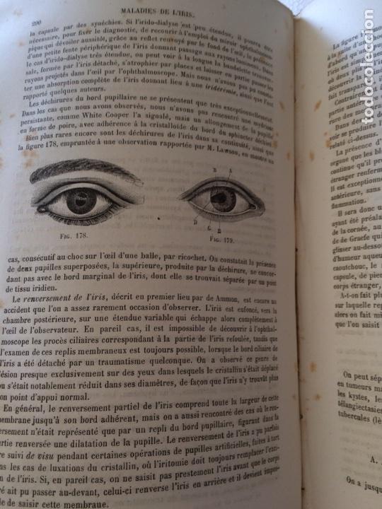 Libros antiguos: Manuel.Dophthaologie.Wecwer et Masselon (1889) - Foto 28 - 90819052