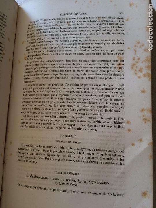 Libros antiguos: Manuel.Dophthaologie.Wecwer et Masselon (1889) - Foto 29 - 90819052