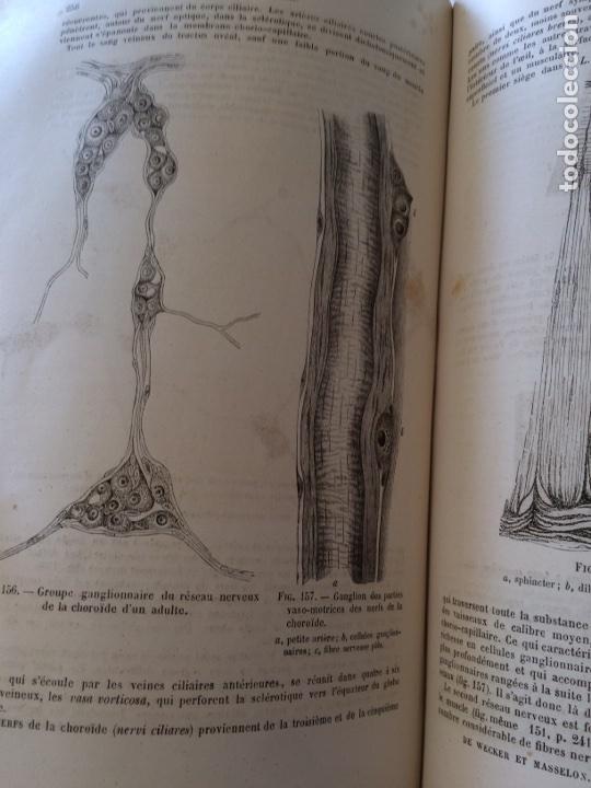 Libros antiguos: Manuel.Dophthaologie.Wecwer et Masselon (1889) - Foto 30 - 90819052
