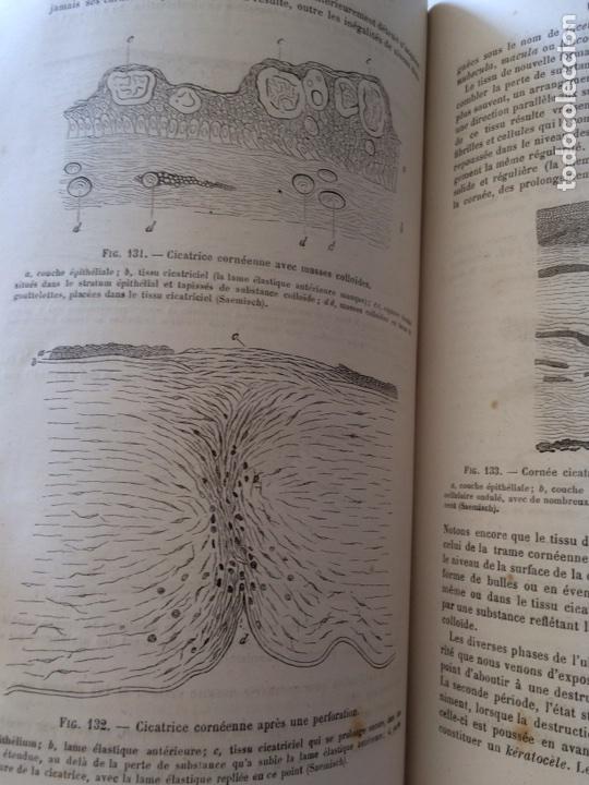 Libros antiguos: Manuel.Dophthaologie.Wecwer et Masselon (1889) - Foto 31 - 90819052