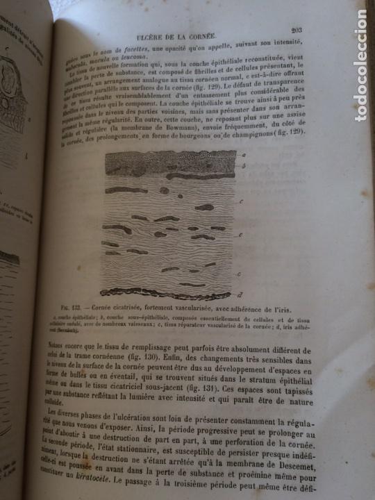 Libros antiguos: Manuel.Dophthaologie.Wecwer et Masselon (1889) - Foto 32 - 90819052