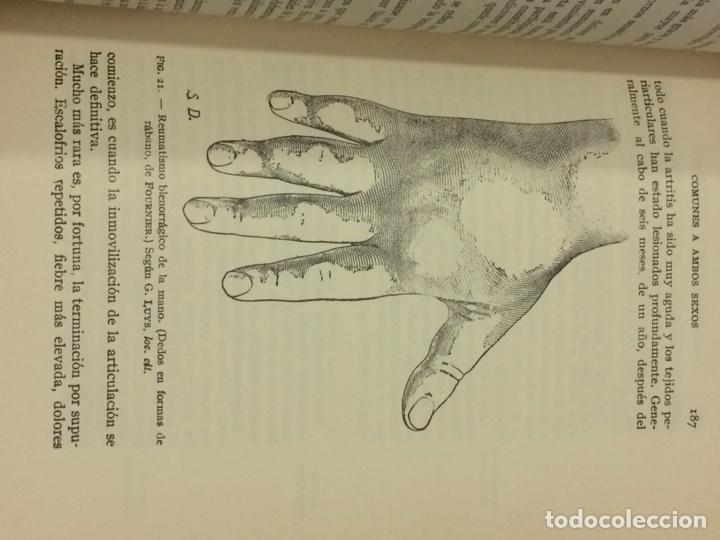 Libros antiguos: Enfermedades Blenorragicas de las vias Genitourinarias Dr.Alex Renault - Foto 24 - 91764409