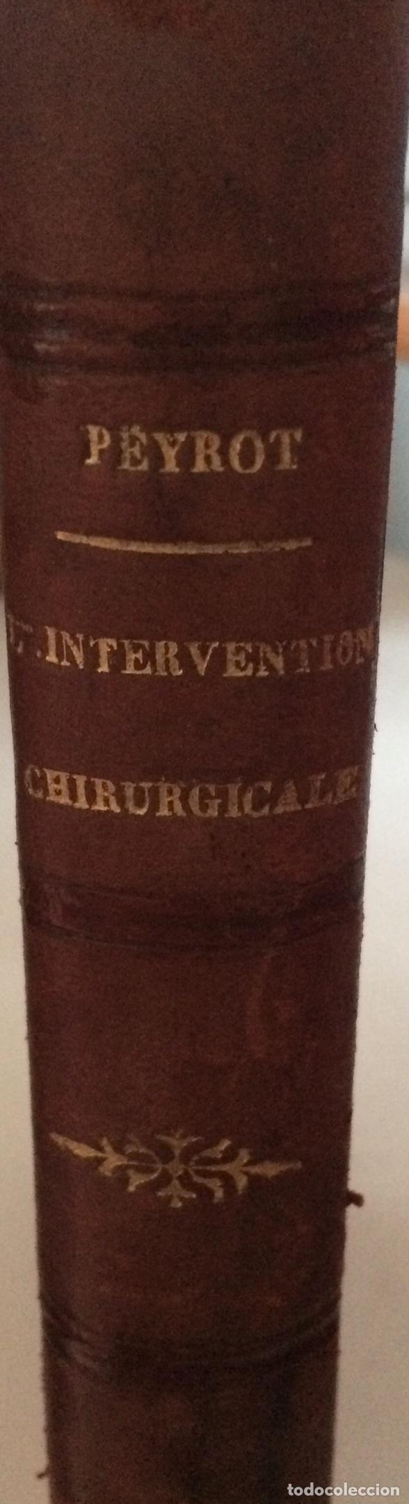 Libros antiguos: De Lintervention Chirurgicale Lobstruction intestinable JJ Peyrot - Foto 2 - 92887668
