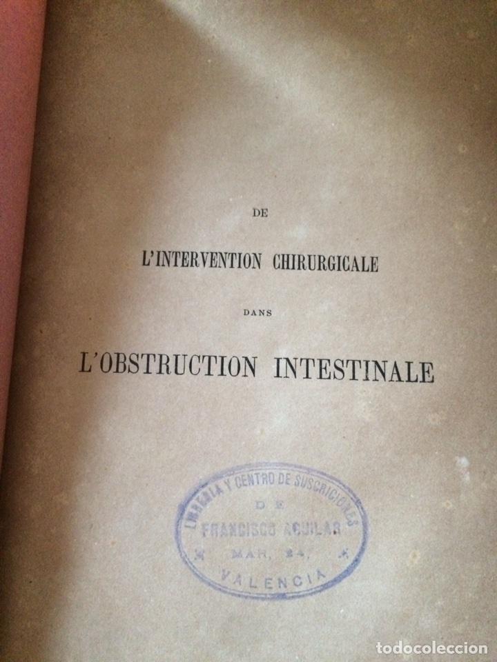 Libros antiguos: De Lintervention Chirurgicale Lobstruction intestinable JJ Peyrot - Foto 3 - 92887668