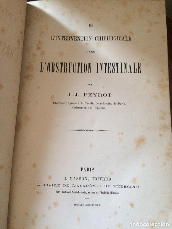 Libros antiguos: De Lintervention Chirurgicale Lobstruction intestinable JJ Peyrot - Foto 4 - 92887668