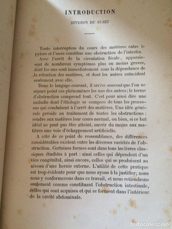 Libros antiguos: De Lintervention Chirurgicale Lobstruction intestinable JJ Peyrot - Foto 5 - 92887668