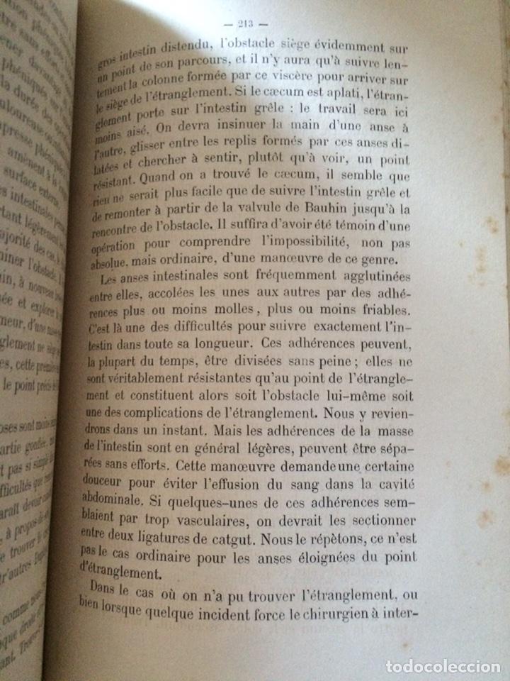Libros antiguos: De Lintervention Chirurgicale Lobstruction intestinable JJ Peyrot - Foto 6 - 92887668