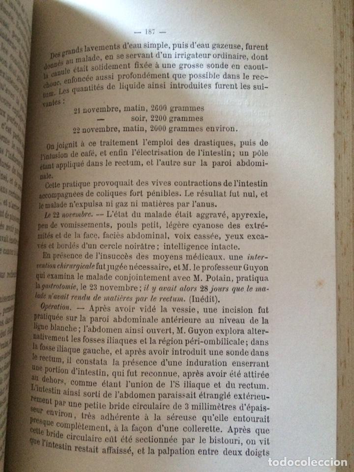 Libros antiguos: De Lintervention Chirurgicale Lobstruction intestinable JJ Peyrot - Foto 7 - 92887668