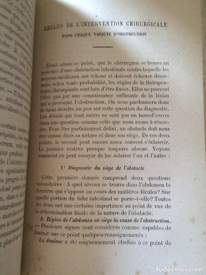Libros antiguos: De Lintervention Chirurgicale Lobstruction intestinable JJ Peyrot - Foto 8 - 92887668