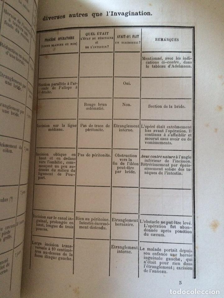 Libros antiguos: De Lintervention Chirurgicale Lobstruction intestinable JJ Peyrot - Foto 10 - 92887668