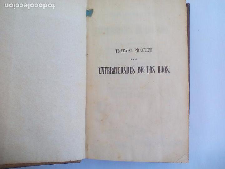 Libros antiguos: Tratado práctico de las enfermedades de los ojos. - T. Wharton-Jones. 1862. 1ª edición - Foto 2 - 100695475