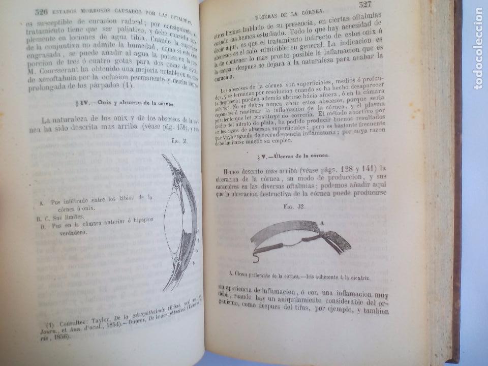 Libros antiguos: Tratado práctico de las enfermedades de los ojos. - T. Wharton-Jones. 1862. 1ª edición - Foto 4 - 100695475