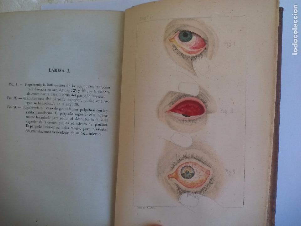Libros antiguos: Tratado práctico de las enfermedades de los ojos. - T. Wharton-Jones. 1862. 1ª edición - Foto 5 - 100695475