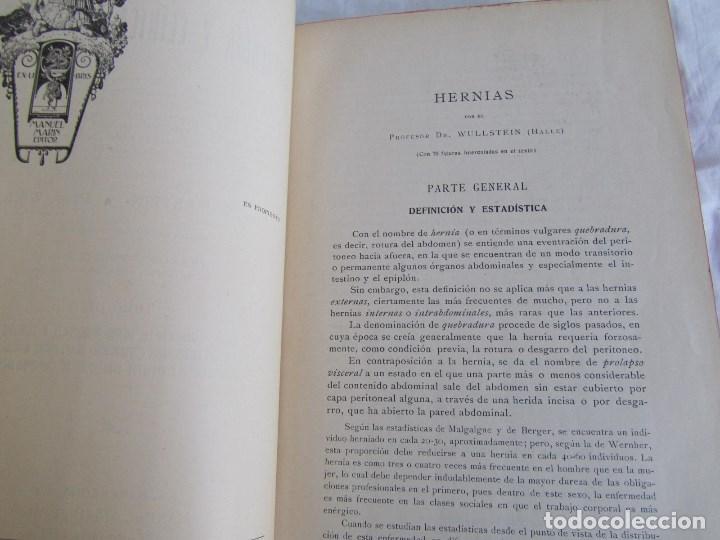 Libros antiguos: Tratado de patología y Clínica Quirúrgicas Wullstein & Wilms 1914 Tomo III - Foto 9 - 105169143