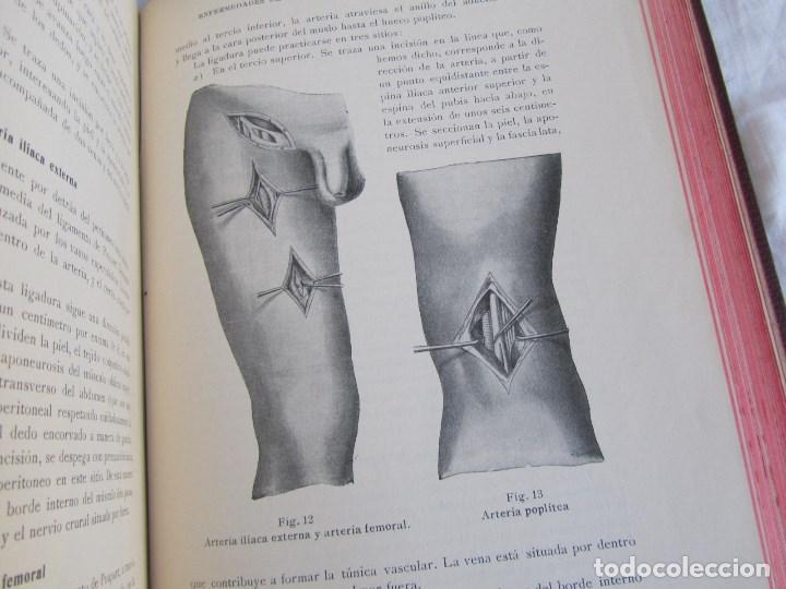 Libros antiguos: Tratado de patología y Clínica Quirúrgicas Wullstein & Wilms 1914 Tomo III - Foto 10 - 105169143