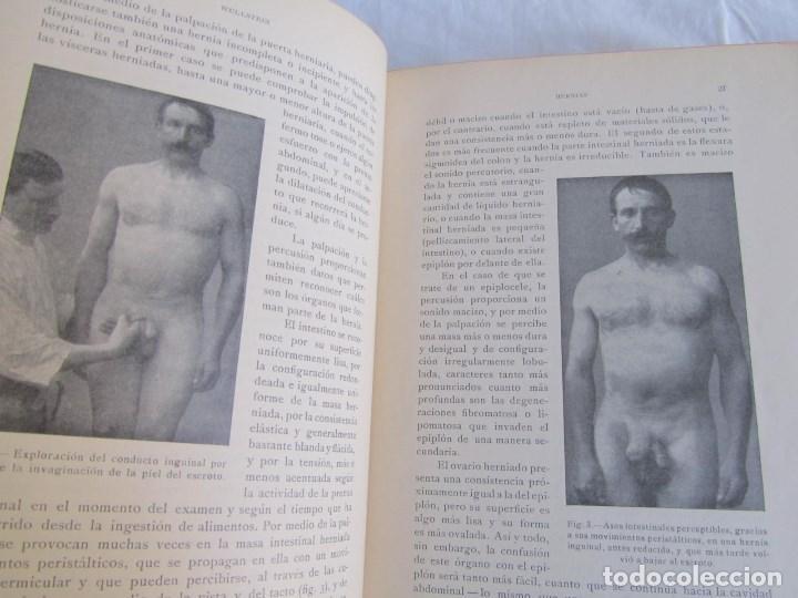 Libros antiguos: Tratado de patología y Clínica Quirúrgicas Wullstein & Wilms 1914 Tomo III - Foto 14 - 105169143