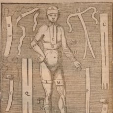 Libros antiguos: DIONIS,PIERRE-LIBRO DE CIRUGÍA- COURS D'OPERATIONS DE CHIRURGIE DEMONTREES AU JARDIN ROYAL- 1.777. Lote 108302743