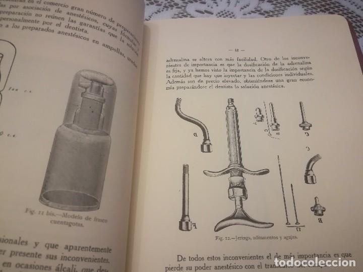 Libros antiguos: Libro atlas manual práctico de extracción de los dientes con 160grabados 1923 m. Fotos - Foto 4 - 111830527