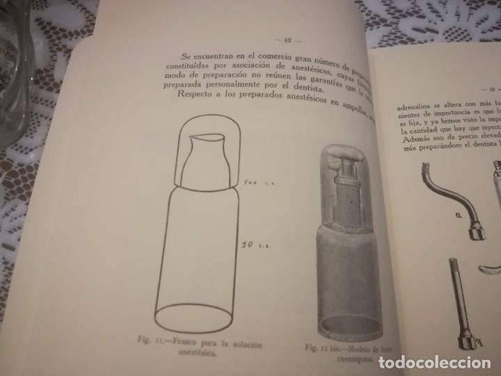 Libros antiguos: Libro atlas manual práctico de extracción de los dientes con 160grabados 1923 m. Fotos - Foto 7 - 111830527