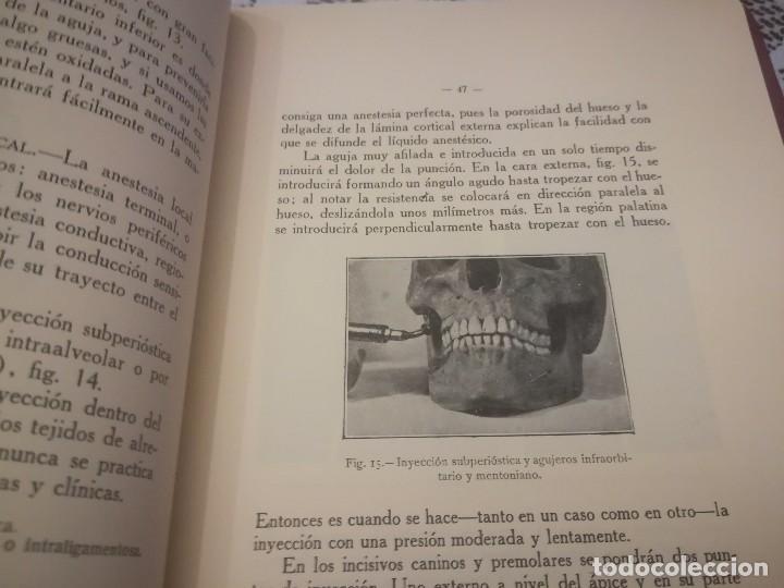 Libros antiguos: Libro atlas manual práctico de extracción de los dientes con 160grabados 1923 m. Fotos - Foto 12 - 111830527