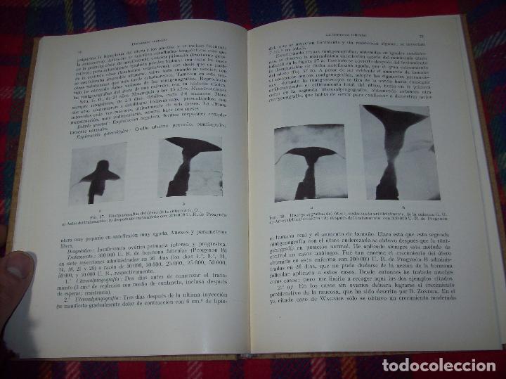 Libros antiguos: LAS HORMONAS SEXUALES FEMENINAS.CICLO GENITAL Y EL LÓBILO ANTERIOR...C. CLAUBERG. ED. LABOR. 1935. - Foto 13 - 112208555