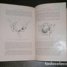 Libros antiguos: RECASENS, S: TRATADO DE OBSTETRICIA. BARCELONA, SALVAY Y Cª 1916. 2 VOLS.. Lote 112826815