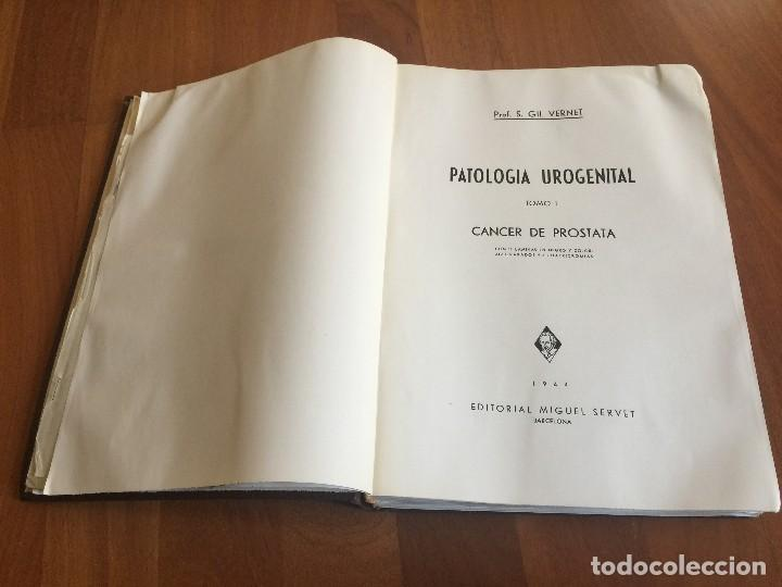 Libros antiguos: Libro PATOLOGÍA UROGENITAL Tomo 1 CÁNCER DE PRÓSTATA Prof. S. GIL VERNET, 1944. FIRMADO POR EL AUTOR - Foto 5 - 118955987