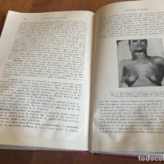 Libros antiguos: LIBROS TRATADO DE MEDICINA INTERNA, CECIL, ED. SALVAT, TOMOS I Y II, (COMPLETO), 1947. Lote 118956187