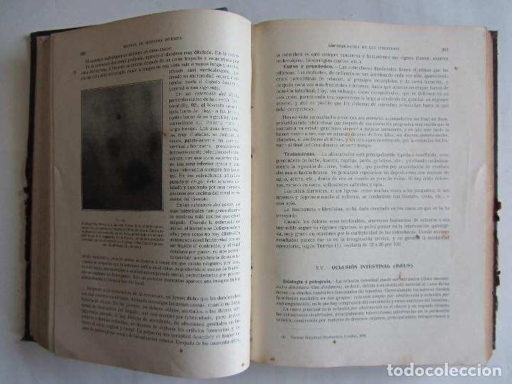 Libros antiguos: Manual de medicina interna. T. Hernando, G. Marañón. Tomo I. Año 1916. Ilustrado. Tapas duras. 938 p - Foto 4 - 124654559