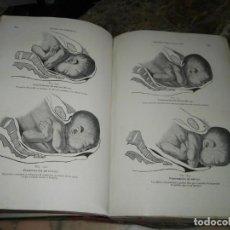 Libros antiguos: TRATADO DE OBSTETRICIA RECASENS BARCELONA ILUSTRADO. Lote 130190707