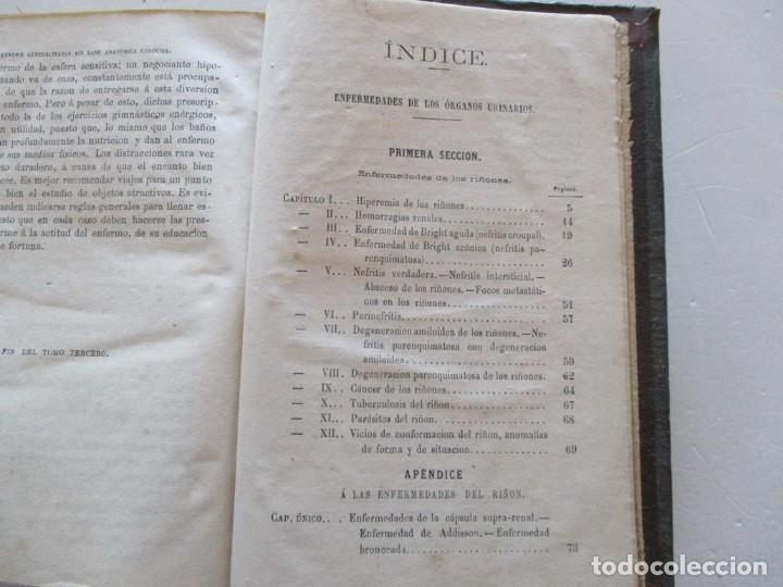 Libros antiguos: Tratado Completo de Patología Interna y Terapéutica. Tomos I, II, III y IV. CUATRO TOMOS. RM87515 - Foto 8 - 130996000