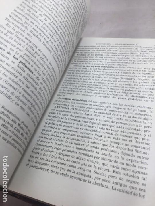 Libros antiguos: Tratado de Patología Interna S. Jaccoud traducción Joaquín Gassó 2 tomos 1875 grabados y láminas. - Foto 12 - 133376330