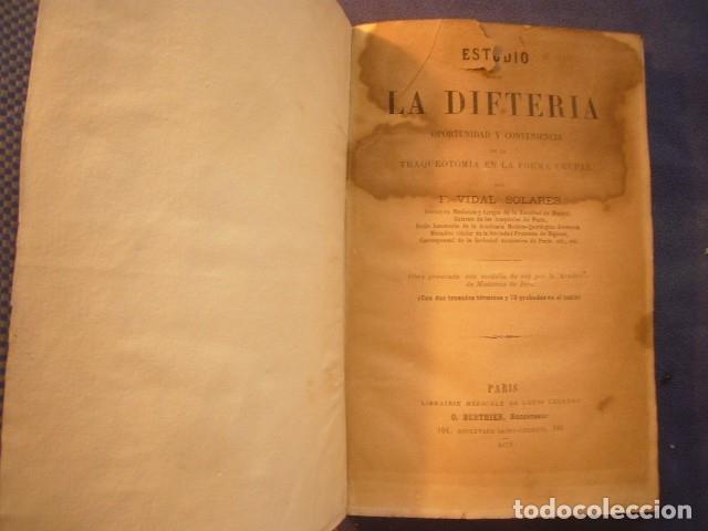 Libros antiguos: F. VIDAL SOLARES: - ESTUDIO SOBRE LA DIFTERIA;... CONVENIENCIA DE LA TRAQUEOTOMÍA - (PARIS, 1879) - Foto 3 - 133458674