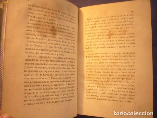 Libros antiguos: F. VIDAL SOLARES: - ESTUDIO SOBRE LA DIFTERIA;... CONVENIENCIA DE LA TRAQUEOTOMÍA - (PARIS, 1879) - Foto 5 - 133458674