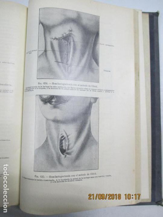 Libros antiguos: TRATADO DE OTO-RINO-LARINGOLOGIA PARA MÉDICOS Y ESTUDIANTES POR EL DR. D. RICARDO BOTEY. 2ª EDI. BCN - Foto 6 - 133888590