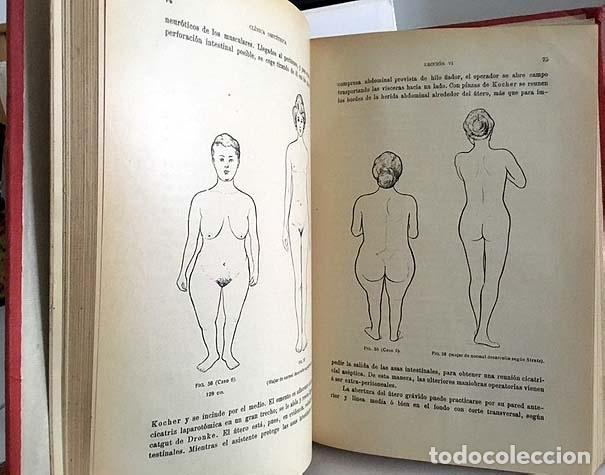 Libros antiguos: Liepmann : Clínica Obstétrica 1911. Partos. Obstetricia. Fórceps. Etc. 212 figuras - Foto 2 - 134109266
