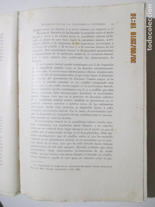 TRATADO DE PRÓTESIS DENTAL I. CHARLES R. TURNER. BARCELONA 1933 (Libros Antiguos, Raros y Curiosos - Ciencias, Manuales y Oficios - Medicina, Farmacia y Salud)