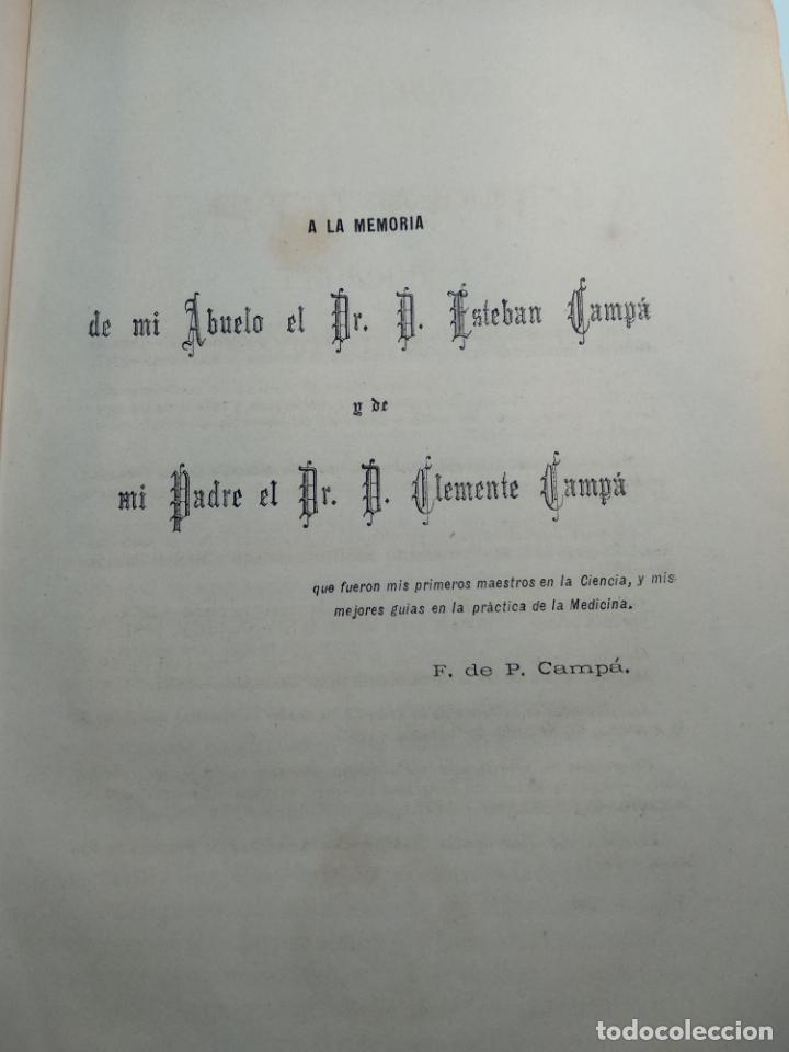 Libros antiguos: TRATADO DE OBSTETRICIA - DOCTOR F. DE P. CAMPÁ - 2 TOMOS - L.DE PASCUAL AGUILAR - VALENCIA - 1885 - - Foto 5 - 137879202