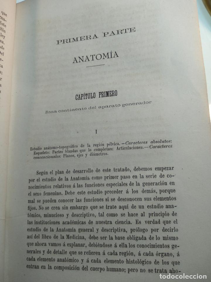 Libros antiguos: TRATADO DE OBSTETRICIA - DOCTOR F. DE P. CAMPÁ - 2 TOMOS - L.DE PASCUAL AGUILAR - VALENCIA - 1885 - - Foto 7 - 137879202