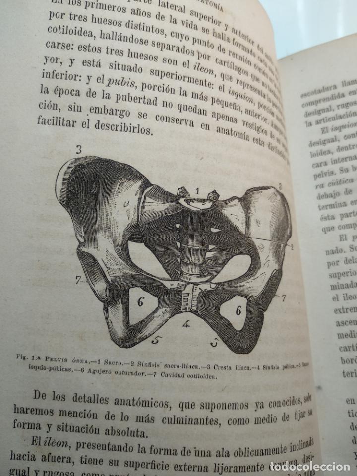 Libros antiguos: TRATADO DE OBSTETRICIA - DOCTOR F. DE P. CAMPÁ - 2 TOMOS - L.DE PASCUAL AGUILAR - VALENCIA - 1885 - - Foto 8 - 137879202