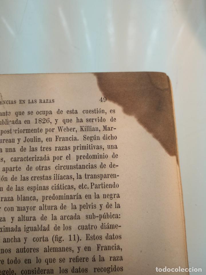 Libros antiguos: TRATADO DE OBSTETRICIA - DOCTOR F. DE P. CAMPÁ - 2 TOMOS - L.DE PASCUAL AGUILAR - VALENCIA - 1885 - - Foto 9 - 137879202