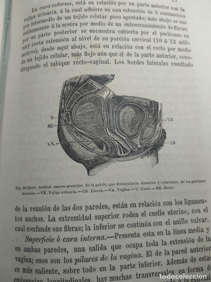 Libros antiguos: TRATADO DE OBSTETRICIA - DOCTOR F. DE P. CAMPÁ - 2 TOMOS - L.DE PASCUAL AGUILAR - VALENCIA - 1885 - - Foto 10 - 137879202