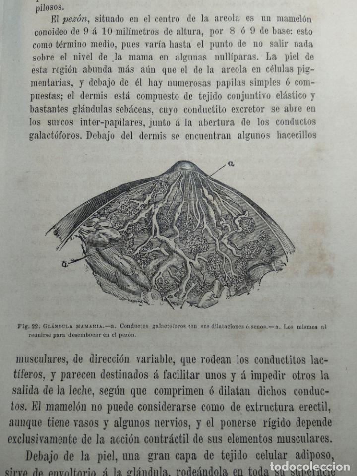 Libros antiguos: TRATADO DE OBSTETRICIA - DOCTOR F. DE P. CAMPÁ - 2 TOMOS - L.DE PASCUAL AGUILAR - VALENCIA - 1885 - - Foto 11 - 137879202