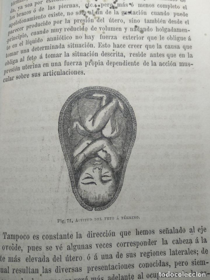Libros antiguos: TRATADO DE OBSTETRICIA - DOCTOR F. DE P. CAMPÁ - 2 TOMOS - L.DE PASCUAL AGUILAR - VALENCIA - 1885 - - Foto 12 - 137879202