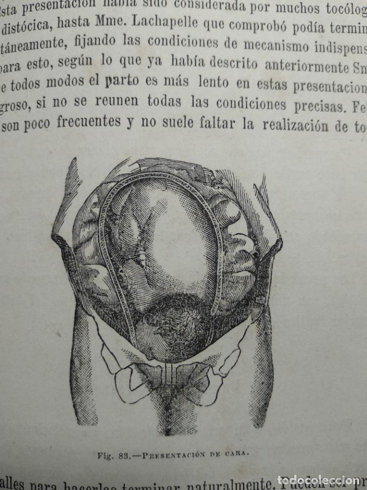 Libros antiguos: TRATADO DE OBSTETRICIA - DOCTOR F. DE P. CAMPÁ - 2 TOMOS - L.DE PASCUAL AGUILAR - VALENCIA - 1885 - - Foto 14 - 137879202