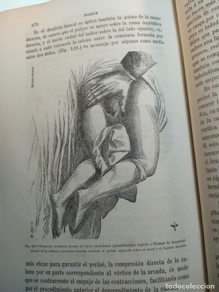 Libros antiguos: TRATADO DE OBSTETRICIA - DOCTOR F. DE P. CAMPÁ - 2 TOMOS - L.DE PASCUAL AGUILAR - VALENCIA - 1885 - - Foto 16 - 137879202